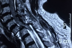 thumbs_CERVICAL-SPINE-FRACTURE